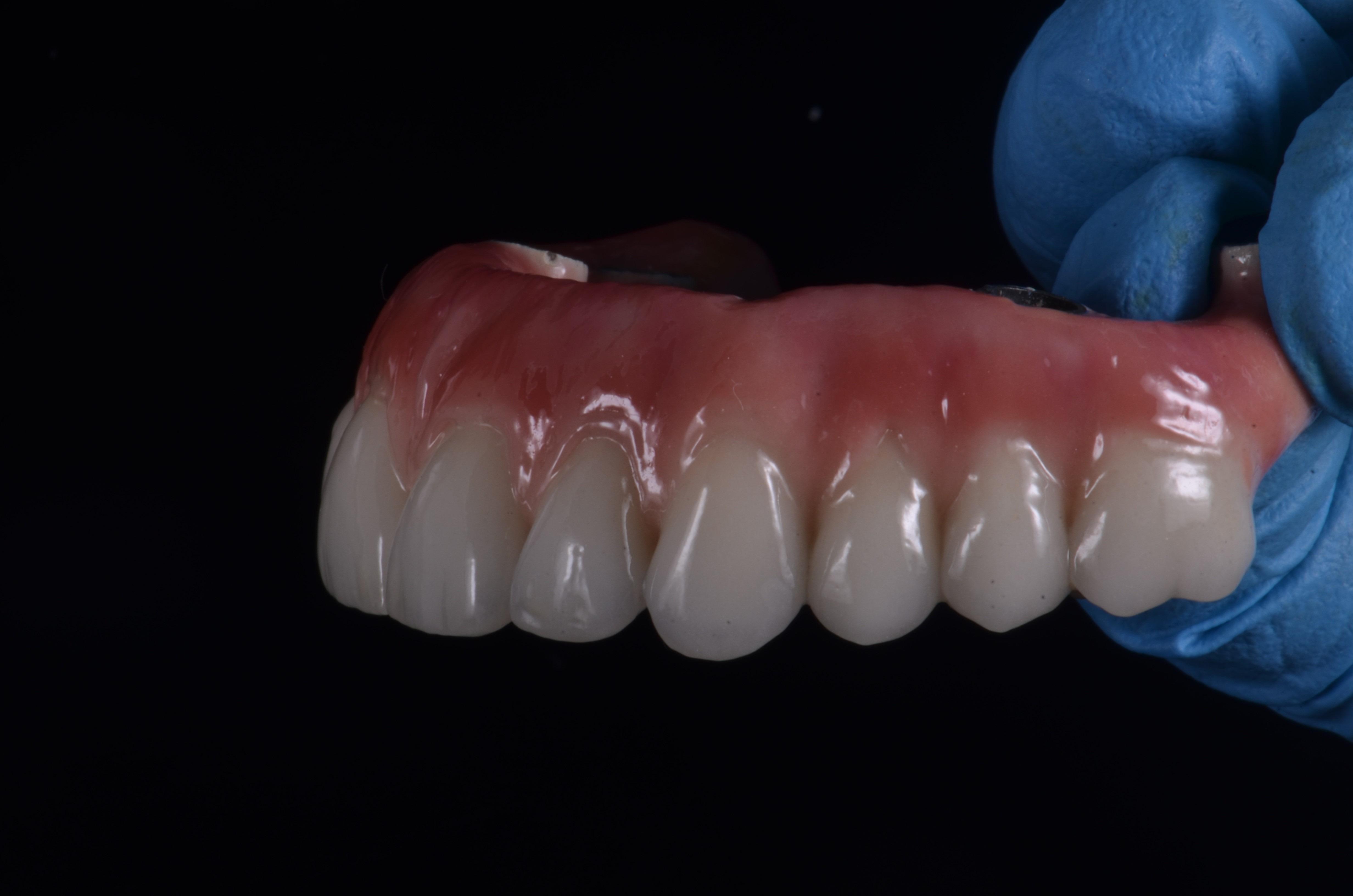 Implantes Zigomaticos